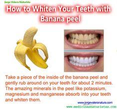 banana teeth whitener