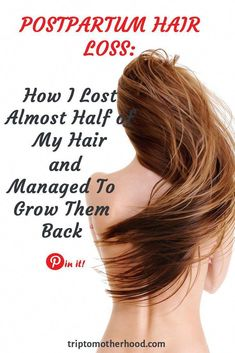 Hair is a striking feature of human body. Hair loss, especially by female/male pattern baldness is matter of great concern. Pattern baldness is particularly is very troubling condition. In this type of baldness the hair [. Losing Hair Women, Hair Loss Women, Stop Hair Loss, Prevent Hair Loss, Postpartum Hair Loss, Dramatic Hair, Male Pattern Baldness, Hair Starting, Hair Loss Remedies