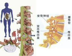 腰間盤突出症不花錢、最簡單的治療方式,轉發收藏給有用到的朋友腰椎間盤突出症是體育運動者和辦公白領人士容易發生的一種常見病。是由外傷或其他多種原因造成椎盤間纖維環破裂,使髓核突出於椎間盤,從而壓迫神經根引起的腰腿痛。北京國都尚醫研究院的大夫,設計了一種沉腰斜板組合手法。此法對治療腰椎間突出症有很好的療效,它的優點是:病人治療時基本沒有痛感,見效快,方法簡便,宜於推廣。輕的幾次就能使症狀消失。