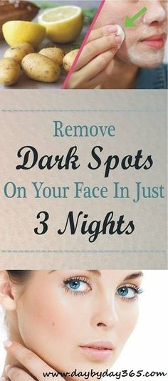 this great solution and remove Dark Spots on your Face in just 3 night .Try this great solution and remove Dark Spots on your Face in just 3 night . Black Spots On Face, Age Spots On Face, Brown Spots On Skin, Skin Spots, Dark Spots, Brown Skin, Dark Brown, How To Get Rid, How To Remove