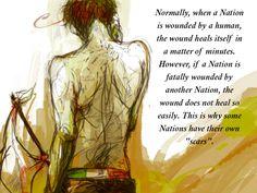 Hetalia Headcanons>>im crying now!!!imagine them having ugly scars like this forever!!