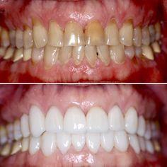 Before and after porcelain veneers by Bellevue Dentist Dr. Andrew Keller of Da Vinci Dental