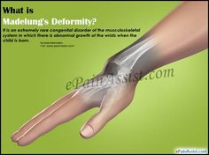 What is Madelung's Deformity & How is it Treated? Wrist Pain, Trauma, Disorders, Health And Wellness, Medical, Style, Summer, Makeup, Medical Doctor