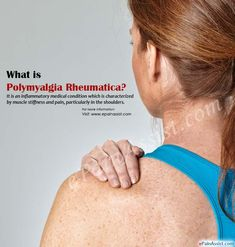 What is Polymyalgia Rheumatica Polymyalgia Rheumatica Treatment, Polymyalgia Rheumatica Symptoms, Simply Health, Rheumatoid Arthritis, Multiple Sclerosis, Autoimmune Disease, Health And Wellbeing, Medical Conditions, Fibromyalgia