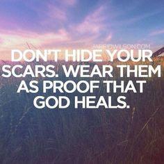 God heals -Jarrid Wilson