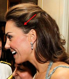 """Kate Middleton Reveals Three-Inch Scar on Forehead: Kate revealed an alarming three-inch long scar on the left  side of her head, behind her temple. As a child, the Duchess had """"a very serious operation,"""" officials  told the Daily Mail, but declined to detail the exact surgery or reason  for treatment."""" (via Kate & William: Must-Reads from Around the Web)"""
