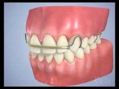 Toujours timide de porte un appareil dentaire métallique et génie de sourire devant les autres, grâce a l'Appareil Dentaire Invisible on retrouve notre sourire et de ne pas y être génie devant tous le monde a découvrir et a test ;)