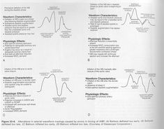IABP Waveform Interpretation | Arterial Line Waveform Interpretation