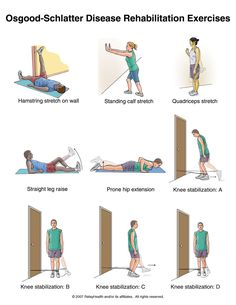 Osgood-Schlatter Disease Rehabilitation Exercises--(also known as tibial tubercle apophyseal traction injury and epiphysitis of the tibular tubercle) is an irritation of the patellar ligament at the tibial tuberosity