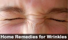 Are you suffering with Wrinkles problem? Then follow these 22 amazing home remedies and get relief from wrinkles problem. Wrinkles are the signs of ageing.