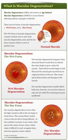 Macular Degeneration (AMD), also known as Age Related Macular Degeneration (ARMD) is an eye disease affecting millions of people worldwide. ...