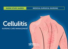Cellulitis Nursing Care Management