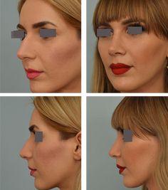 Rhinoplasty Los Angeles | Best Nose Surgery Options | Dr. Grigoryants