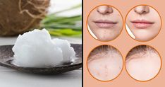 How to Wash Your Face and Say Goodbye to Saggy Facial Skin and Wrinkles! Without a doubt, every woman wants to have healthy, smooth, and glowing skin; Wash Your Face, Face Wash, Grey Hair Remedies, Essential Oils For Face, Facial, Glowing Face, Face Wrinkles, Wrinkled Skin, Natural Beauty Tips