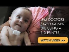 3D printing... not just for toys and guns. WTG docs for coming up with this and the FDA for a quick emergency approval. Doctors 3D-printed an emergency airway tube that saved a 20-month old baby boy's life. After imaging the boy's faulty windpipe, doctors at the C.S. Mott Children's Hospital printed 100 tiny tubes and laser-stitched them together over the trachea