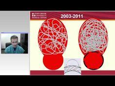 Minimally Invasive Treatment of Brain Aneurysms - YouTube