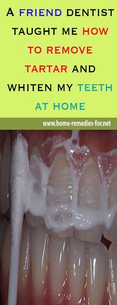 A friend #dentist taught me how to remove #tartar and #whiten my #teeth at home, #remedy #remedies #homemade #beauty #viral #beautytips #wellness