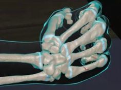 Learn about signs of a metacarpal fracture. Typical symptoms of a metacarpal fracture include pain and swelling of the hand. While bruising may not be seen immediately, there is usually bruising that develops within a few days of the injury.A metacarpal fracture most commonly occurs as a result of a punch (particularly into a hard object). Occasionally they may occur due to a direct impact to the hand from an object travelling at high speed (such as a hockey stick or cricket ball) or a fall…