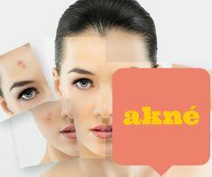 Poznáš niekoho, koho trápi akné? Toto video : 10 Spôsobov Ako sa Zbaviť Akné mu pomôže.  http://www.poradkyna.sk/10-sposobov-ako-sa-zbavit-akne/ via @martinalamosova