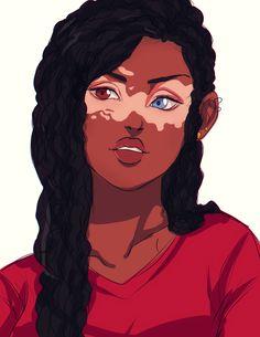 Vitiligo Definition Vitiligo is a disease that causes loss of skin color . How extensively vitiligo can affect a person's skin and how sev. Black Girl Art, Black Women Art, Black Girl Magic, Art Girl, Hora Cartoon, Arte Black, Frida Art, Fan Art, Character Design Inspiration