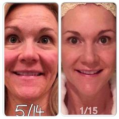 Rodan + Fields gives you the best skin of your life and the confidence that comes with it. Created by Stanford-trained Dermatologists, we understand skin. Our easy-to-use Regimens take the guesswork out of skincare so you can see transformative results. Rodan Fields Skin Care, Rodan And Fields Redefine, Amp Roller, Redefine Regimen, Aging Backwards, Acute Care, Hormonal Acne, No Photoshop, Good Skin