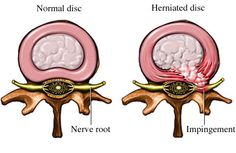 Herniated Discs cause low back pain and neck pain. Find out about pain relief options for chronic pain from herniated discs. Severe Neck Pain, Neck And Back Pain, Sciatica Pain, Sciatic Nerve, Spinal Nerve, Sciatica Relief, Sciatica Exercises, Hip Stretches, Sciatica