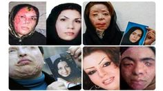 A series of acid attacks on women in the historic Iranian city of Isfahan has raised fears and