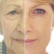 ¡Bicarbonato y limón! Un lifting facial para parecer 20 años más joven