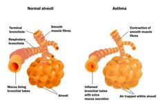 Similitudes y diferencias entre Asma y Alergias