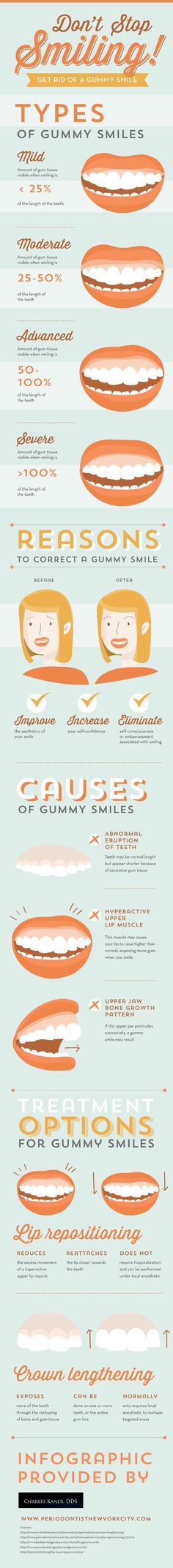 Gummy smiles can range from mild with a small amount of visible gum tissue to severe, where the gum tissue covers 100% of the teeth. Luckily, patients who have gummy smiles can improve their smiles' aesthetic appearance through crown lengthening or lip repositioning treatment. Learn more in this infographic.