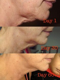 WOW!! Another Real Results reason why I Love Nerium!! Like me on Facebook: Love The Skin You're In- Nerium by Angela