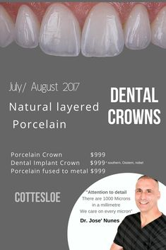 Cost of a Dental Crown in Perth. We focus on extreme attention to detail. From the length of the crown, proportions, translucency on the incisal edge and the 6 stages. Anti-aging Dental Crowns see Dr Jose Nunes 0893154514 Dental Implant Placements. Implants Dentaires, Dental Implant Surgery, Oral Surgery, Implant Dentistry, Tooth Extraction Aftercare, Tooth Extraction Healing, Surgery Logo, Surgery Humor, Dental Bridge Cost