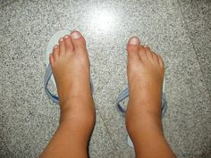 Fibro swelling vs. Arthritis swelling = they are NOT the same!!