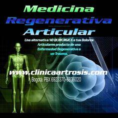Tratamientos rápidos y maravillosos con resultados sorprendentes e inmediatos. Clínica de Artrosis y Osteoporosis www.clinicaartrosis.com PBX: +571-6836020, Teléfono Movil: +57-3142448344 en Bogotá - Colombia. #tratamientosartrosis #artrosissincirugia #medicinaregenerativa #artrosis #clinicaartrosis #clinicaosteoporosis #artrosiscolombia #osteoporosiscolombia #osteoporosis #expertosartrosis #especialistasartrosis #expertososteoporosis #especialistasosteoporosis #tratamentososteoporosis