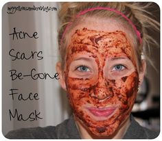 The burning face mask. Use to heal acne scars and blemishes.