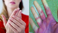 What to do if your feet and hands are always cold? Hands Always Cold, Poor Circulation, Cold Feet, Feet Care, Shit Happens, Health, Honey Benefits, Healthy Skin Care, Salud