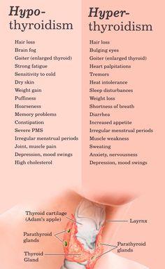 Cruciferous Vegetables and Thyroid Disease ~ The Paleo Mom - American Cheesecake Rezepte Hashimoto Thyroid Disease, Hypothyroidism Diet, Thyroid Issues, Thyroid Hormone, Autoimmune Disease, Graves Disease Symptoms, Hashimotos Disease Diet, Thyroid Cancer, Optimal Thyroid Levels