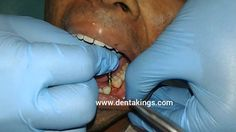 Dental implants in India- Placement of KOS Micro