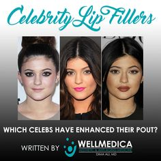Big lips are trending across America. In this list we count down some of the most famous celebrity lip fillers and what they looked like before! Kylie Lips, Kylie Lip Kit, List Of Cosmetics, Lip Implants, Anti Aging Medicine, Raised Eyebrow, Lip Injections, Big Lips, Cosmetic Procedures