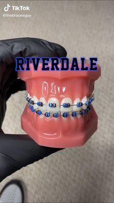 Braces Bands, Braces Tips, Dental Braces, Teeth Braces, Braces Transformation, Red High Waisted Pants, Cute Braces Colors, Getting Braces, Brace Face
