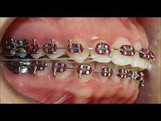 Braces Bands, Braces Tips, Kids Braces, Braces Off, Dental Braces, Teeth Braces, Gold Braces, Black Braces, Power Chain Braces