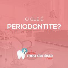 O que é Periodontia? A periodontia ou periodontologia é a especialidade responsável pela prevenção e pelo tratamento de doenças que atingem os tecidos de sustentação e proteção dos dentes, ou seja, a gengiva e o osso. A doença periodontal, se não tratada, pode ocasionar na perda dos dentes.