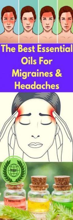The Best Essential Oils For Migraines & Headaches, - Kopfschmerzen Oil For Headache, Headache Relief, Best Oils, Best Essential Oils, Essential Oils For Migraines, Natural Coconut Oil, Coconut Hair, Natural Headache Remedies, Natural Cures