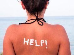 Hilfe bei Sonnenbrand