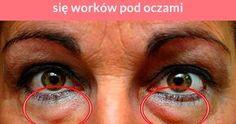 Worki i cienie pod oczami dodają nam lat i powodują, że wyglądamy na zmęczone lub chore. Najczęstszą przyczyną ich powstawania jest nadmiar toksyn w organizmie, zakwaszenie organizmu i zmęczenie. Co ...