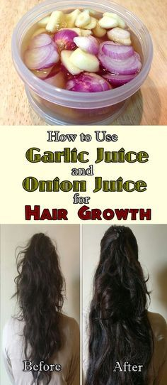 How To Use Garlic and Onion Juice For Hair Growth #oliveoil #shampoo #naturalcure