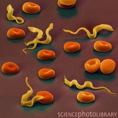 Coloured SEM image of Trypansoma brucei protozoa. Cause of African sleeping sickness carried by the tsetse fly.