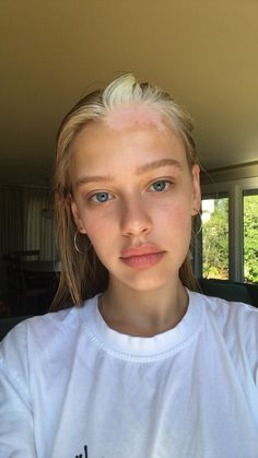Meet the Rihanna-Approved Model Who Wears Her Vitiligo With Pride Porcelain skin, clear blue eyes, and a striking white streak on her forehead and in her hair: Meet the beauty star Tia Jonsson. Skin Makeup, Beauty Makeup, Hair Beauty, No Makeup, Real Beauty, Vitiligo Model, Pretty People, Beautiful People, Vitiligo Treatment