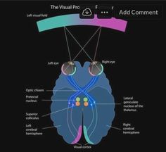 Vivid Vision rewires the visual pathways of the brain with virtual reality vision therapy.