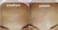 zazracne-bylinky-proti-vraskam-oblicej-bez-vrasek-za-7-dni/ Beauty Tips For Face, Diy Beauty, Beauty Hacks, Body Mask, Homemade Beauty Tips, Physical Condition, Quites, Medicinal Herbs, Skin Tips
